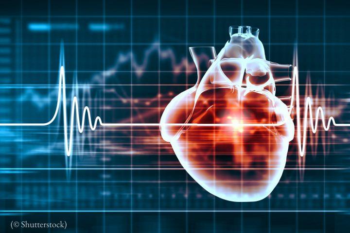 Inteligencia artificial para salvar vidas
